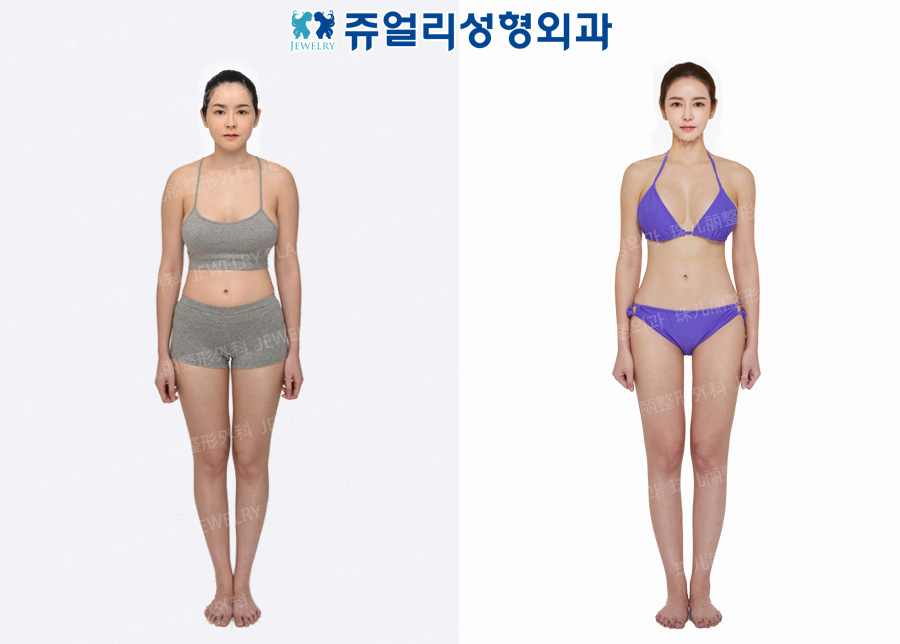 Thigh Liposuction, Arm Liposuction, Calf Size Reduction High-Frequency