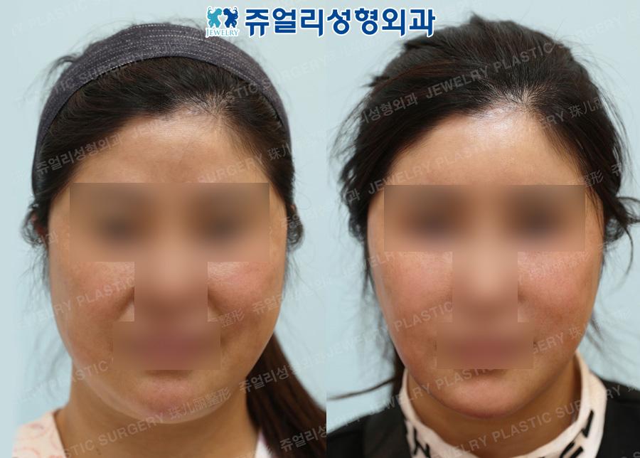 Forehead + Double Chin Liposuction, Mini Lifting, Chin Botox