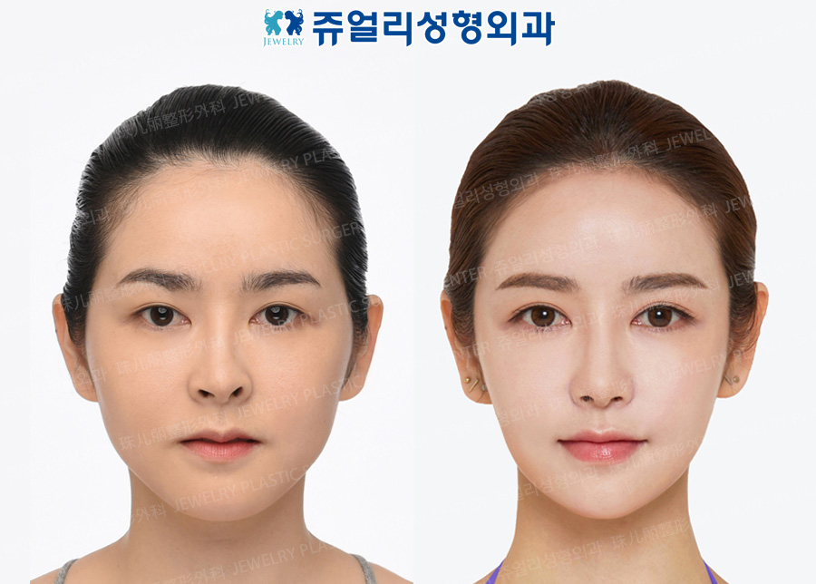 Double Eyelids Reoperation, Lateral Canthoplasty, Lower Lateral Canthoplasty, Nose Reoperation+Nostril Correction, Fat Grafting, Cheekbone Reduction+Square Jaws Reduction+T-osteotomy