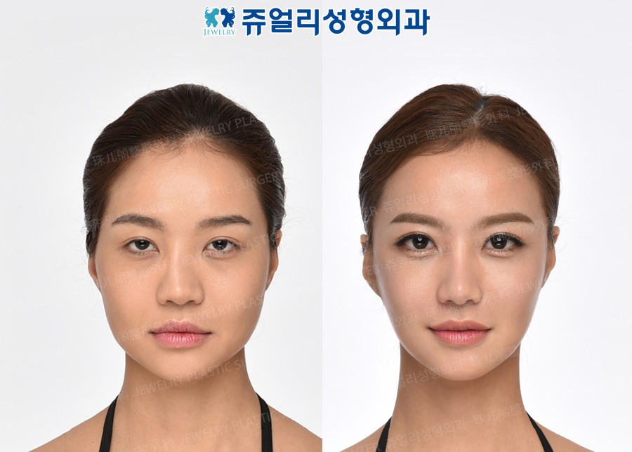 Double Eyelids (Ptosis), Dark Circle Removal (Loveband), Nose (Reoperation), Fat Grafting, Cheekbone Reduction+Square Jaws Reduction+T-osteotomy