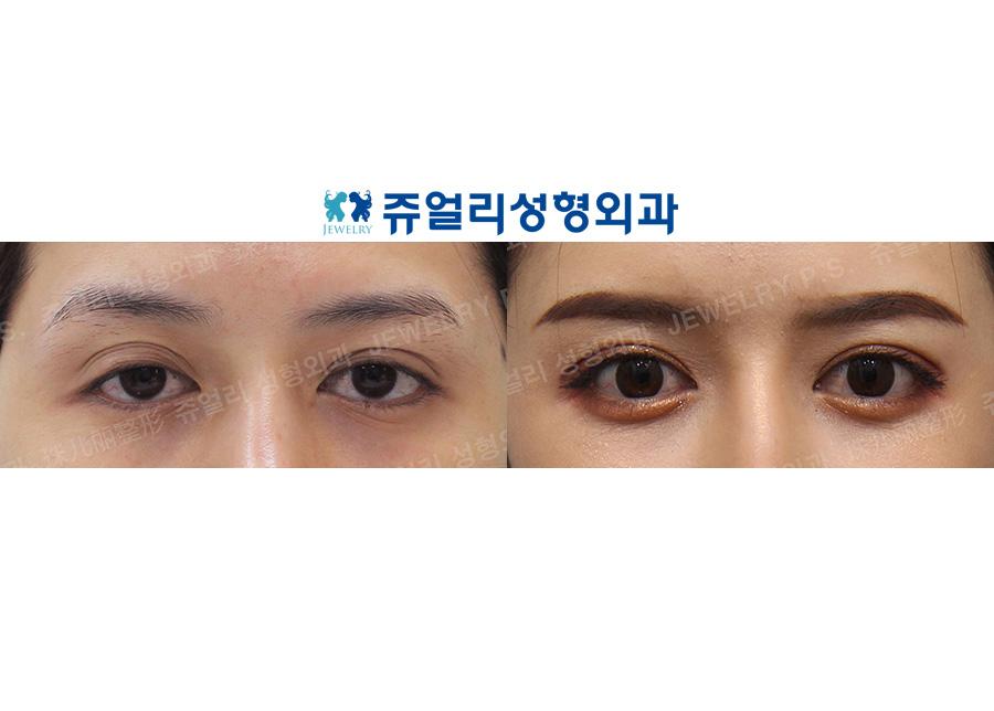 Ptosis correction (Eyes enlargement), Tranconjuctival Blepharoplasty+Loveband