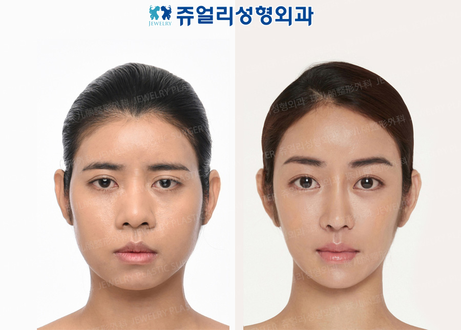 Double Eyelids (Ptosis), Dark Circle Removal, Nose(Wide Nose, Length Extend), Forehead Lifting, Fat Grafting, Cheekbone Reduction+Square Jaws Reduction+T-osteotomy