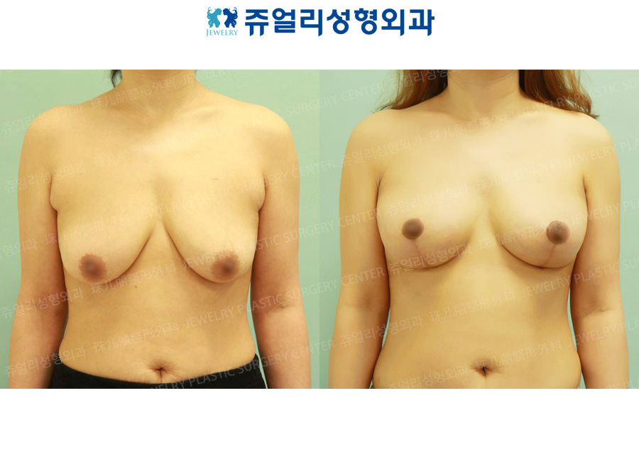 Breast Reduction + Lifting