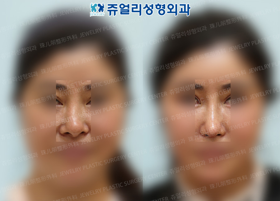 Nose Reoperation (Autogenous Rib Cartilage)