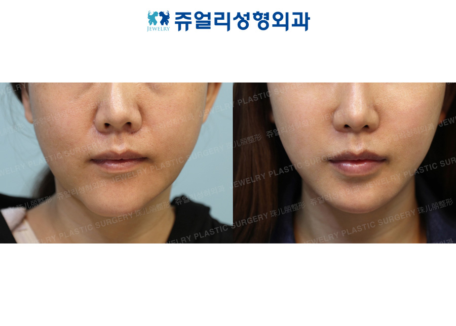 Front Chin Muscle Lifting + Fat Grafting+ Double Chin, Cheek Liposuction