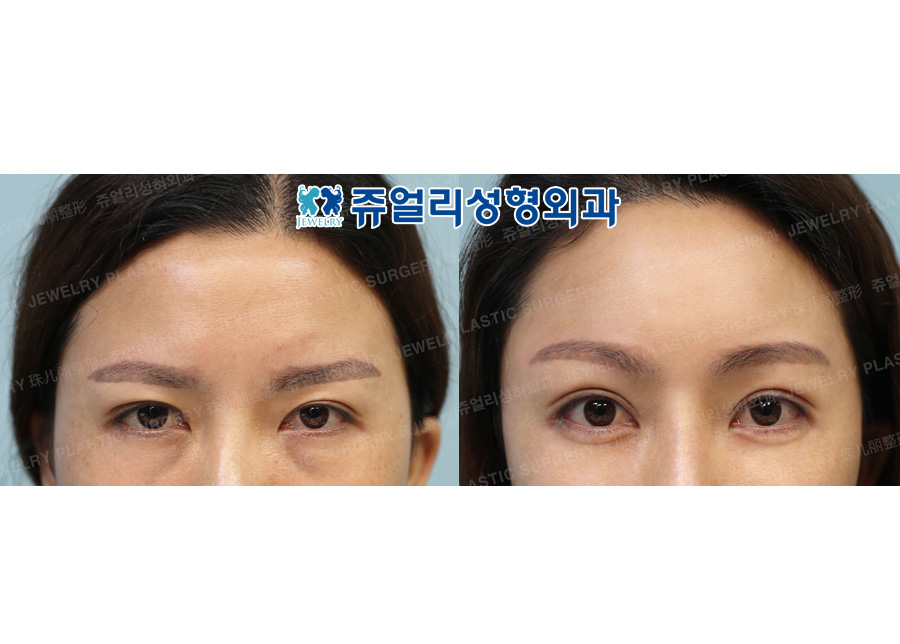 Forehead Lifting, Ptosis, Fat-Repositioning Transconjunctival Blepharoplasty, Nose Reoperation (Autogenous Costal Cartilage), Fat Grafting, Cheek & Chin Liposuction, Chin Muscles Lifting