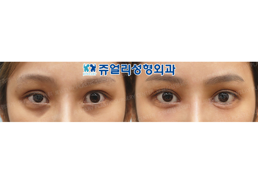 Eyes Reoperation, Ptosis, Dark Circle (+Loveband), Lower Lateral Canthoplasty