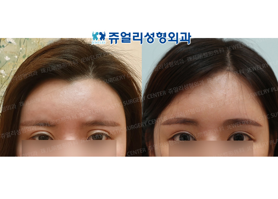 Forehead Lifting + Eyes Reoperation + Epicanthoplasty+Lateral Canthoplasty + Lower Lateral Canthoplasty + Dark Circle Removal + Philtrum Reduction +  Lips Corner Lift (Reoperation)