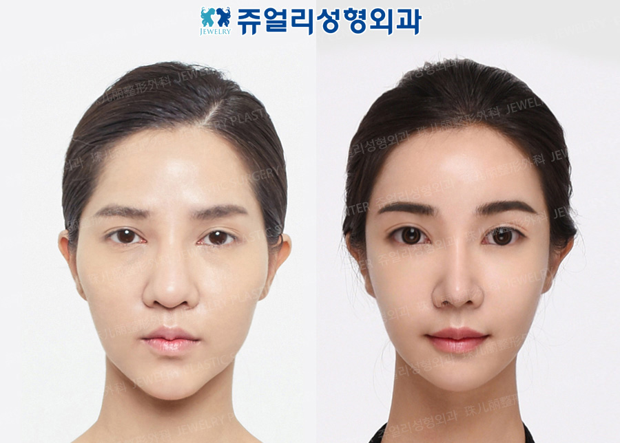 Non-Incision, Fat-Repositioning Transconjunctival Blepharoplasty, Nose, Chin Lifting, Fat Grafting, Cheek/Chin Liposuction, Cheekbone Reduction, Breast Reoperation