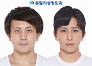 Double Eyelids (Ptosis Correction, Non-Incisional), Non-Incisional Ptosis, Fat-Repositioning Transconjunctival Blepharoplasty, Nose(Nostrils Reduction, Hump Nose), Cheek & Chin Liposuction, Front Chin Implant, Botox (Forehead, Glabella, Chin)
