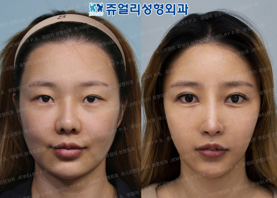 Double Eyelid Reoperation,Epi+Lateral+Lower Lateral Canthoplasty, Dark Circle(Fat-Repositioning),Nose Reoperation, Fat Grafting, Cheek+Jaw Liposuction, Thread Lifting