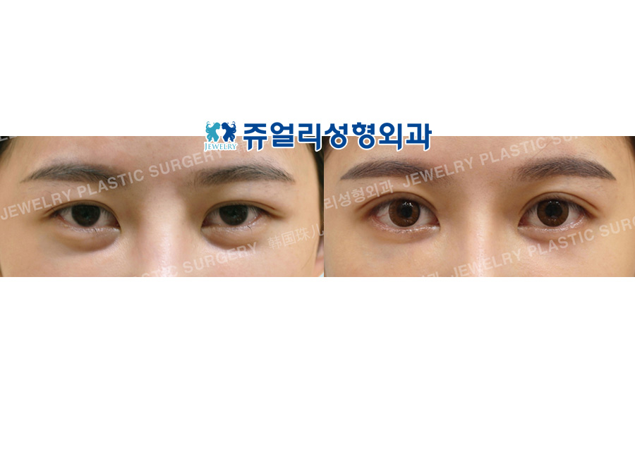 Ptosis Correction (Incision), Lateral+Lower Lateral Canthoplasty, Fat-Repositioning Transconjunctival (Loveband Filler Removal)