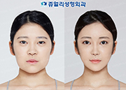 Double Eyelids (Non-Incision), Fat Repositioning Transconjunctival Blepharoplasty, Filler Removal, Nose Reoperation, Liposuction (Double Chin+Cheek), Fat Grafting 2 time (Forehead+Cheek), Facial Contour (Cheekbone, Square Jaws & Front Chin Reduction)