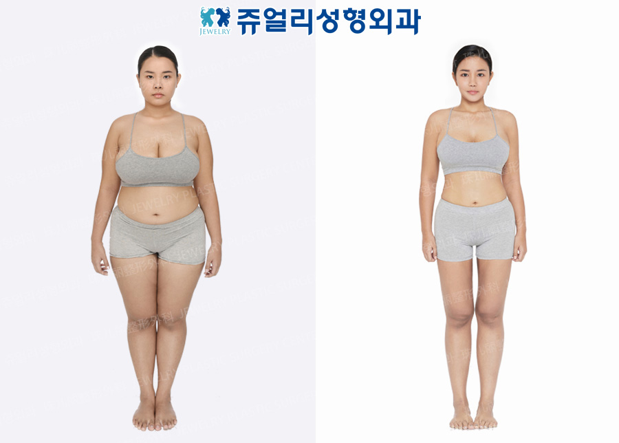 Whole Body Liposuction, Calf Size Reduction High Frequency, Breast Size Reduction