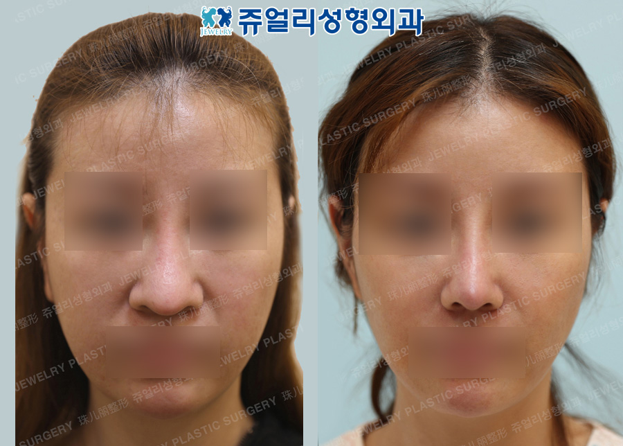 Nose Reoperation (Autogenous Rib Cartilage, Osteotomy), Nostrils Reduction