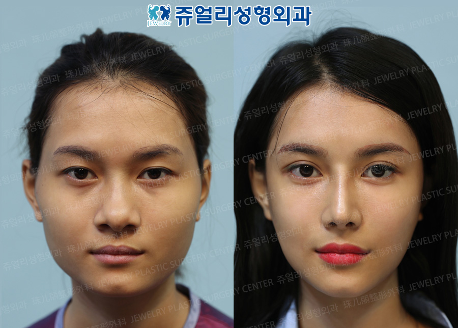 Double Eyes Lid Non-Incision, Lateral Canthoplasty, Lower Lateral Canthoplasty, Fat-Repositioning Transconjuctival Blepharoplasty, Nose(Nostrils Reduction), Cheekbone Reduction, V-Line Square Jaw Reduction_Front View