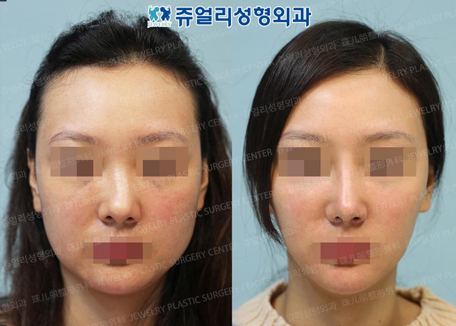 Nose (Osteotomy)