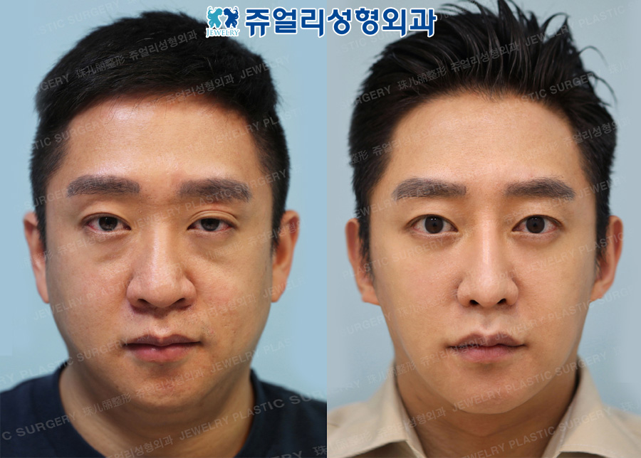 Non-Incisional Ptosis Correction, Dark Circle Removal, Nose+Nostrils Reduction, Double Chin Liposuction, Chin Botox