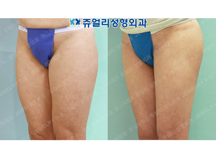 Thighs Liposuction + Hip Up (Fat Grafting)
