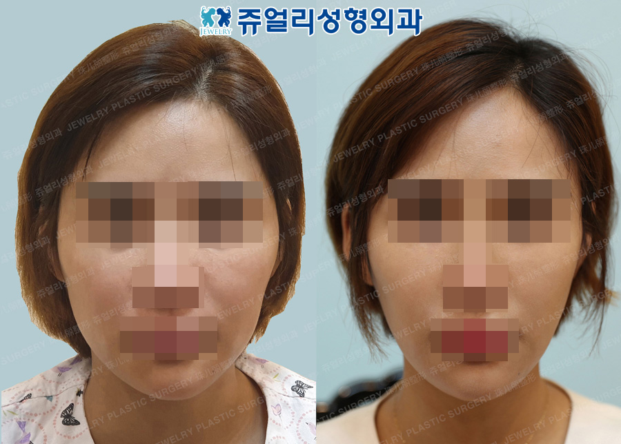 Cheekbone+Square Jaw Reduction+T-osteotomy