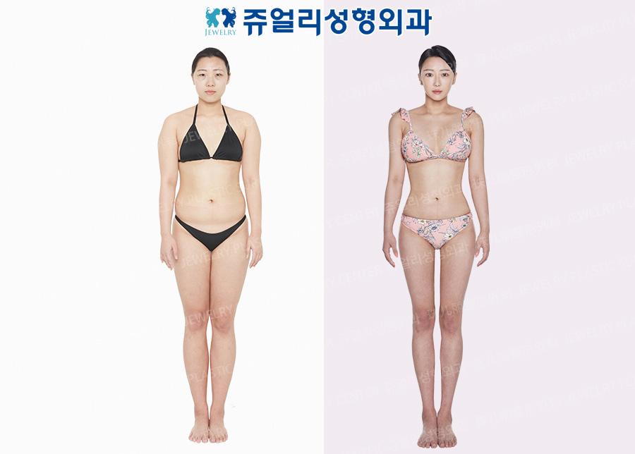 Breast Augmentation, Liposuction (accessory breast liposuction, arm, abdomen, flank, back, thigh, armpit)