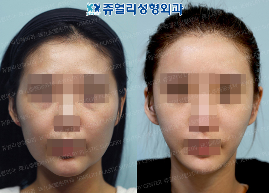 Cheekbone Reduction + Square Jaws Reduction + Front Chin Reduction