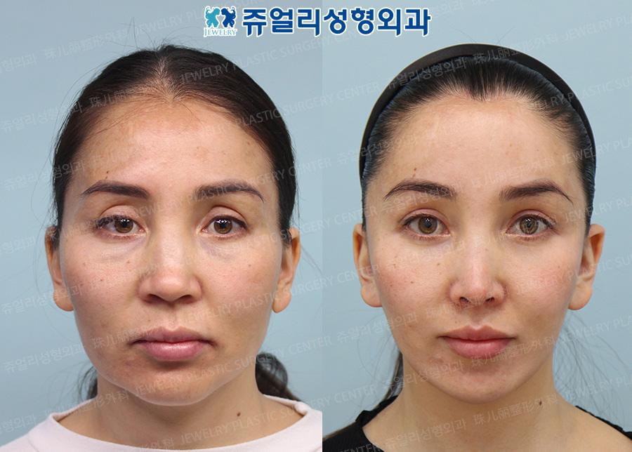 Double Chin Liposuction, Face Lifting, Cheekbone Reduction