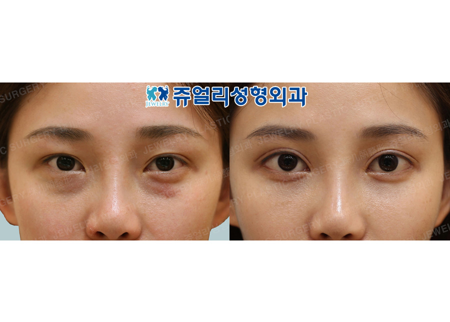 Double Eyelids Reoperation, Epi+Lateral+Lower Lateral Canthoplasty, Fat-Repositioning Transconjunctival + Loveband