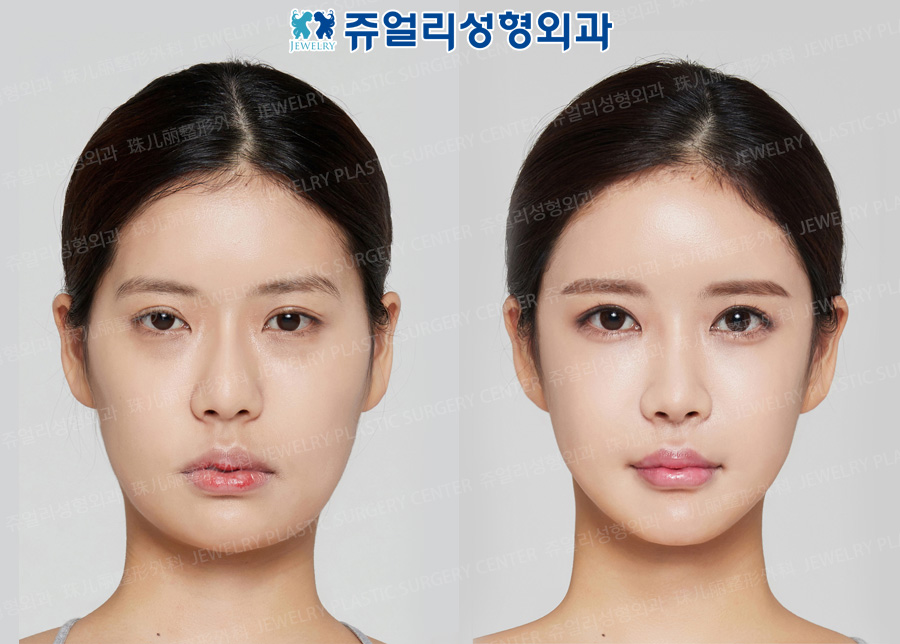 Cheekbone+Square Jaws Reduction+T-osteotomy, Double Eyelids Reoperation (Size Reduction+Eyes Enlargement)+Epi+Lateral Canthoplasty, Dark Circle Removal, Nose Reoperation (Deviated Nasal Septum, Costal Cartilage, Temporal Muscle Grafting), Fat Grafting