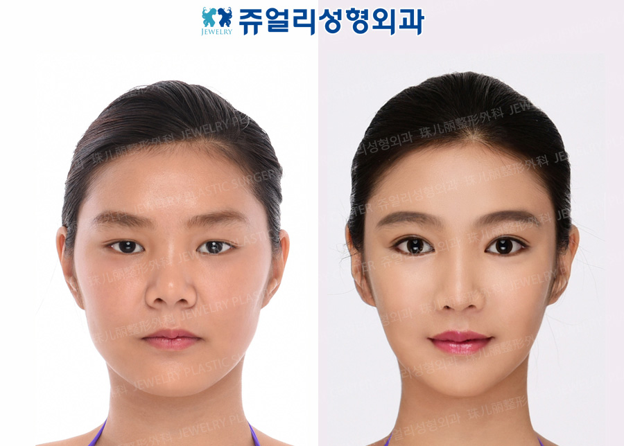 Ptosis, Lateral Canthoplasty, Lower Lateral Canthoplasty, Nose (Autogenous Costal Cartilage), Fat Grafting, Cheekbone Reduction+Square Jaws Reduction+T-osteotomy