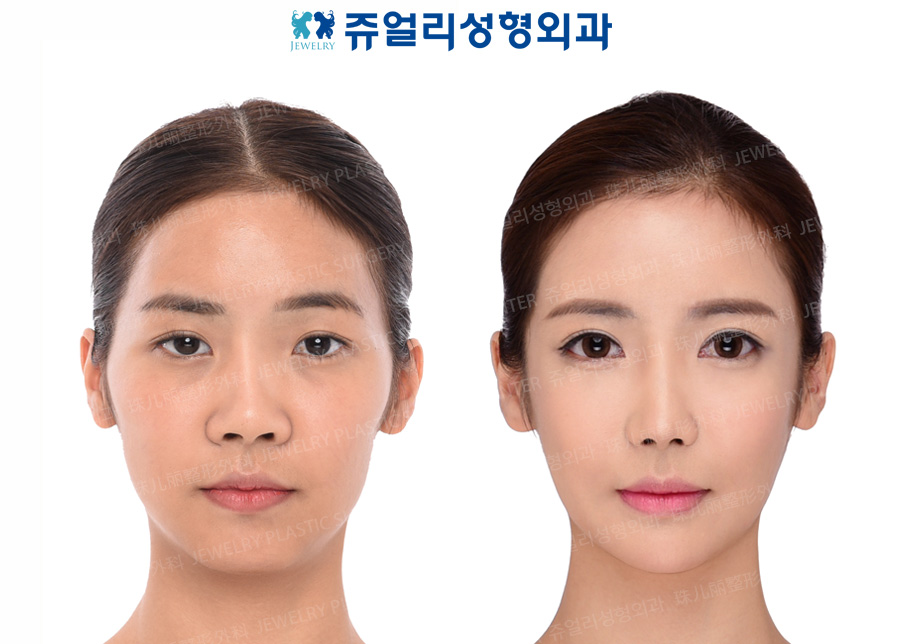 Ptosis, Epicanthoplasty, Lateral Canthoplasty, Dark Circle Removal, Nose Reoperation, Fat Grafting, Cheek/Chin Liposuction, Cheekbone Reduction