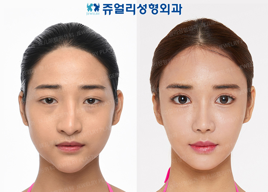 Eyes Surgery (Epicanthoplasty, Lateral Canthoplasty, Lower Lateral Canthoplasty, Fat-Repositioning Transconjunctival Blepharoplasty, Loveband), Nose Reoperation, Fat Grafting, Cheek/Chin Liposuction, Chin Implant, Chin Botox