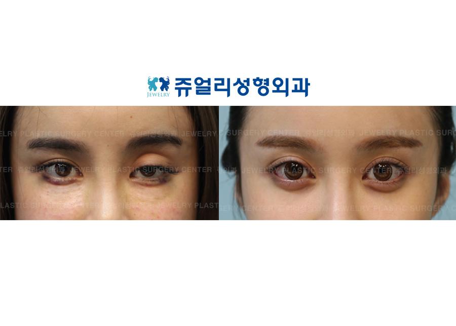 안검하수+애교