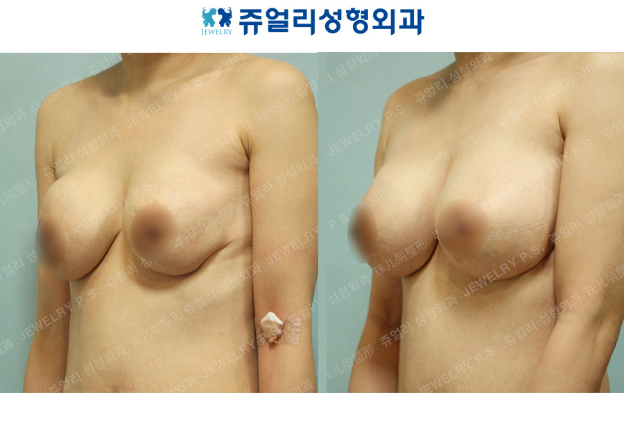 Breast Reoperation (Capsular Contracture, Areola Incision)