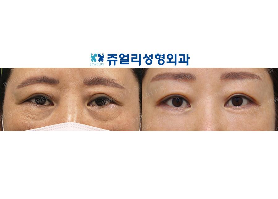 Double Eyelid Reoperation, Lower Blepharoplasty Reoperation