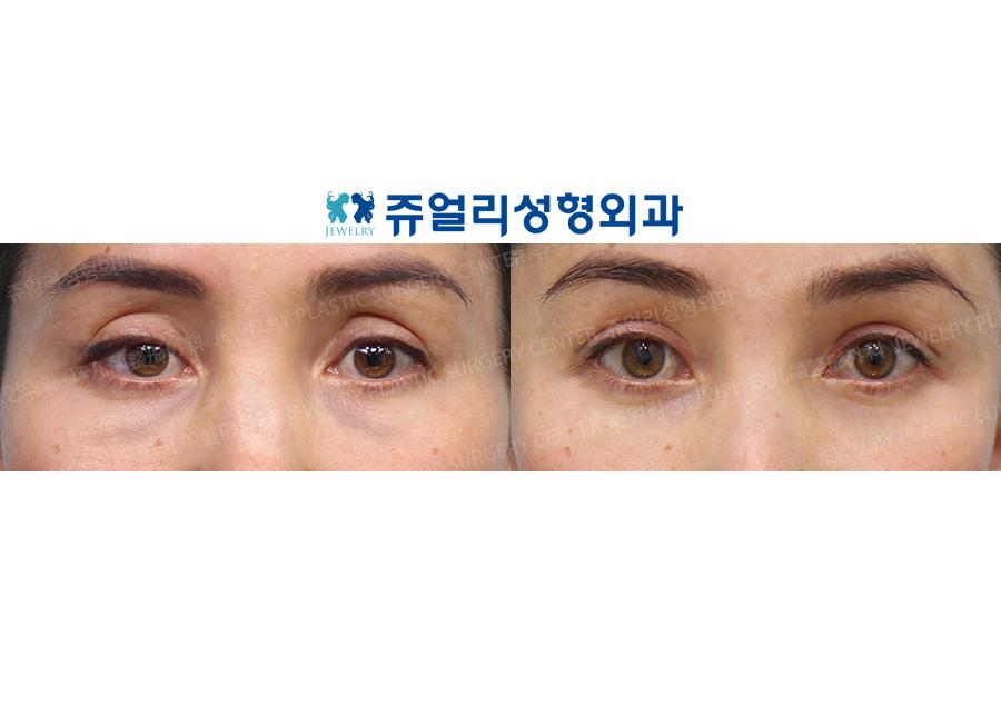 Double Eyelids Reoperation (Ptosis)+ Upper Eyelid Fat Grafting + Lower Blepharoplasty