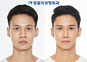 Eyes (Double Eyelids Non-Incisional, Non-Incisional Ptosis Correction+Epicanthoplasty), Nose(Osteotome, Hump Nose, Nostrils Reduction), Cheekbone Reduction, Front Chin Implant, Square Jaws Botox