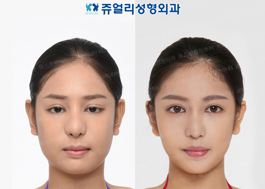 Double Eyelids Reoperation (Ptosis), Nose Reoperation, Cheek+Double Chin Liposuction, Square Jaws Reduction+T-osteotomy