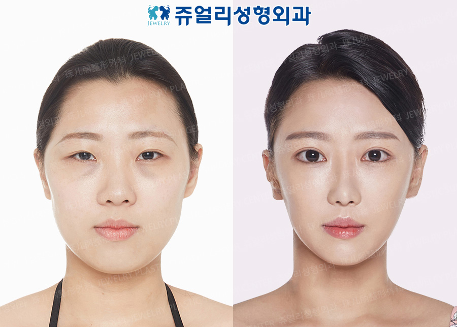 Double Eyelids (Incision), Ptosis Correction, Epi/Lateral/Lower Lateral Canthoplasty, Fat-Repositioning Transconjunctival Blepharoplasty, Nose, Fat Grafting, Facial Contouring Triple Combo (Cheekbone + Square Jaw + T-osteotomy Reduction)