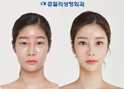 Double Eyelids (Lower Lateral Canthoplasty, Lateral Canthoplasty), Lower Blepharoplasty (Dark Circle Removal, Loveband), Bent Nose (Reoperation), Nostrils Reduction, Fat Grafting, Cheek/Chin Liposuction