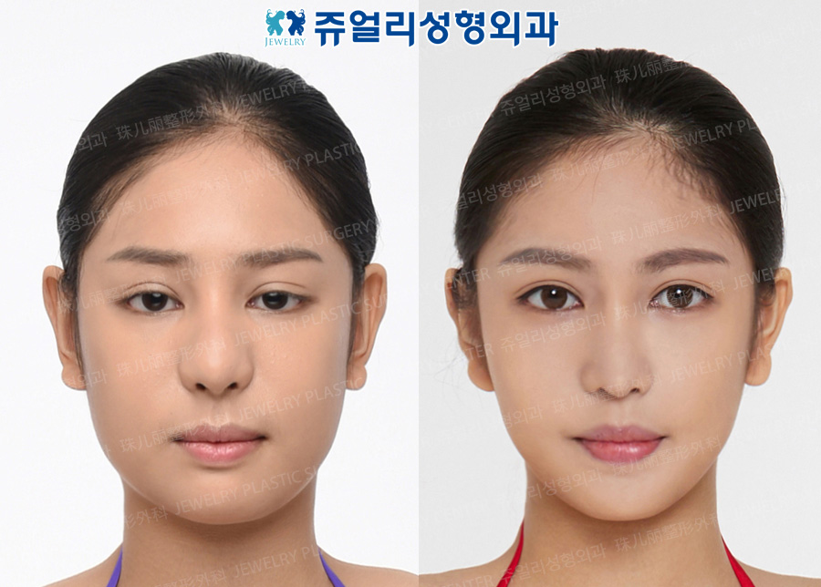 Jaw Reduction+T-osteotomy, Nose Reoperation, Double Eyelids Reoperation (Ptosis), Cheek + Double Chin Liposuction,