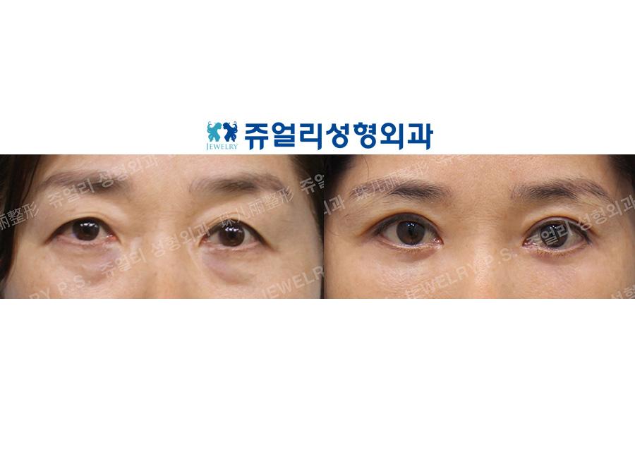 Upper Blepharoplasty, Lower Blepharoplasty