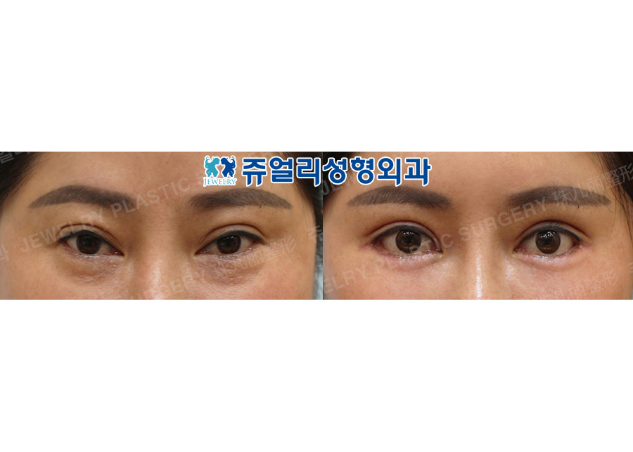 Double Eyelids Reoperation (Ptosis), Lateral + Lower Lateral Canthoplasty, Lower Blepharoplasty