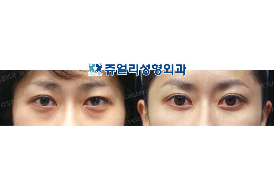 Double Eyelids + Dark Circle (Fat-Repositioning Transconjunctival)