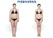 Liposuction (Forearm+Armpit, Upper Lower Abdomen, Both Flank Side, Whole Thigh, Calf BTX, Polymastia), Breast Surgery