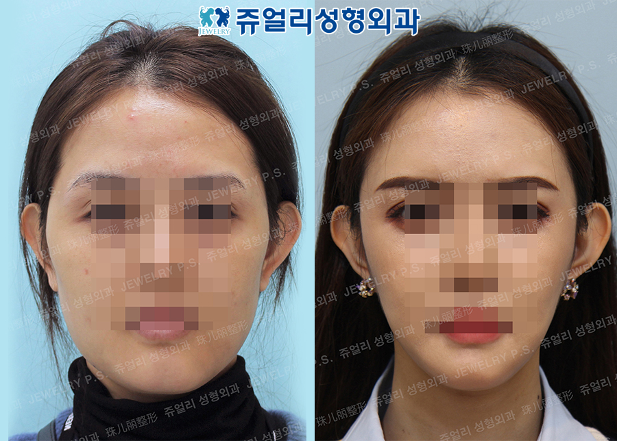 Cheekbone Reduction, Square Jaw Reduction, T-osteotomy