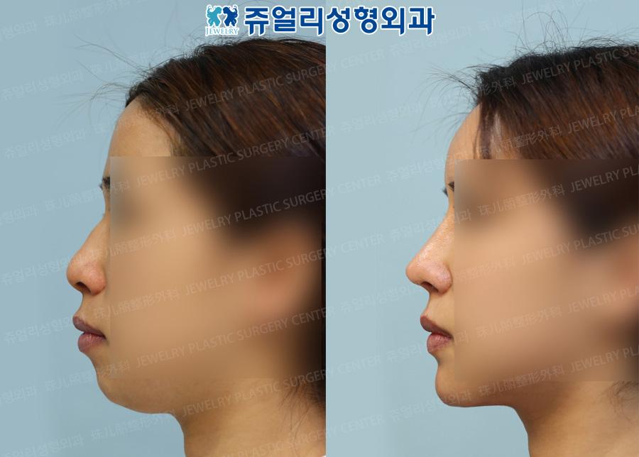 턱 보형물, 이중턱 지방흡입