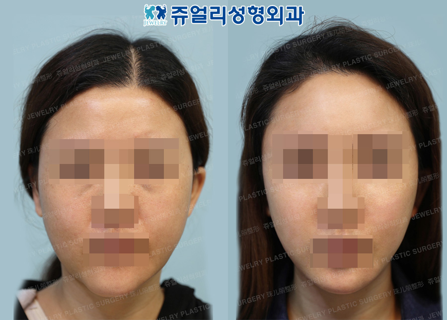 Chin & Cheek Liposuction, Fat Grafting, Forehead Lifting, Ptosis, Fat-Repositioning Transconjunctival Blepharoplasty, Nose Reoperation (Autogenous Costal Cartilage), Chin Muscle Lifting