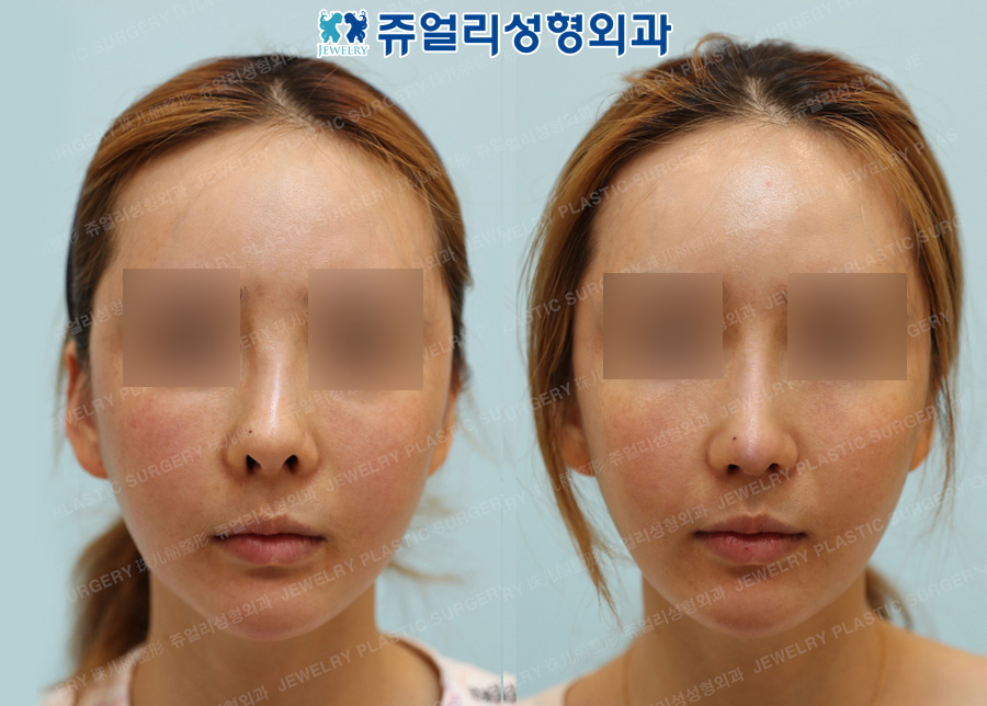 Nose Reoperation (Collapsed Nose) - Use rib cartilage