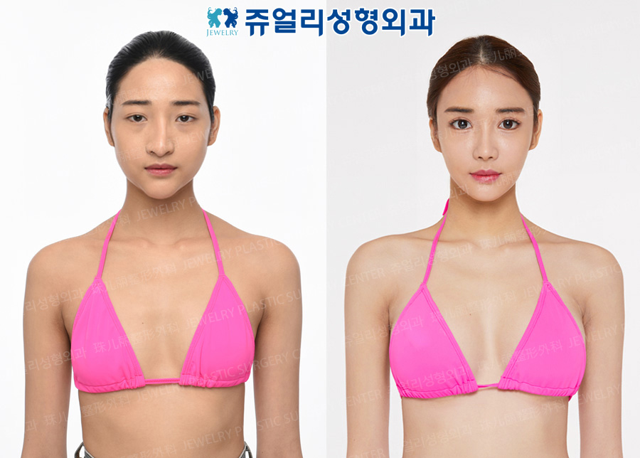 Breast Augmentation (Teardrop), Eyes Surgery (Epicanthoplasty, Lateral Canthoplasty, Lower Lateral Canthoplasty, Fat-Repositioning Transconjunctival, Loveband), Nose Reoperation, Fat Grafting, Cheek & Chin Liposuction, Chin Implant, Chin Botox
